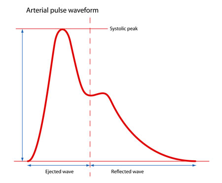Arterial Pulse Waveform